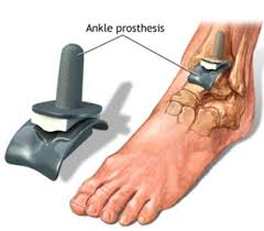 Ankle prosthesis