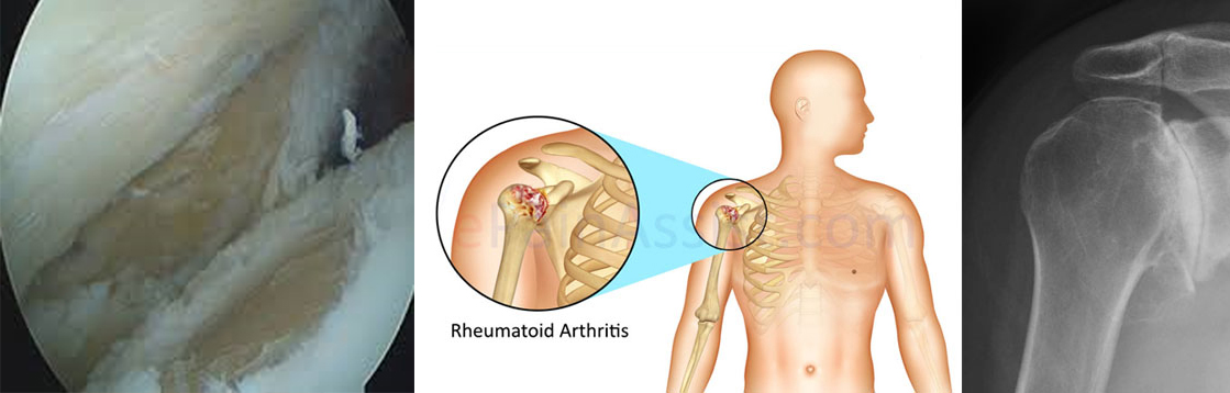 Shoulder joint arthritis